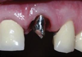 implants-4